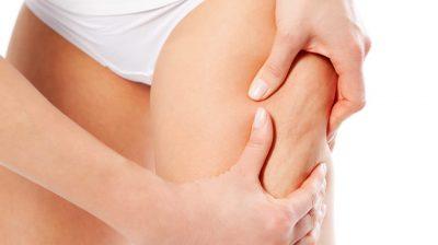 Remédios naturais contra a celulite