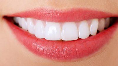 Remédios naturais para ter os dentes brancos