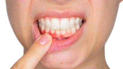 Gengivite: 15 remédios que podem ajudar