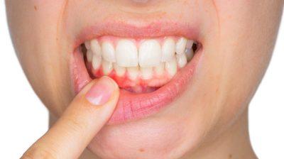 Remédio caseiro para aftas na boca